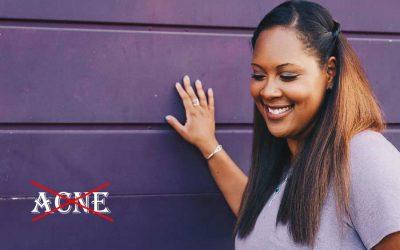 Women's Health: Hormonal Balance, Acne and Skin Health